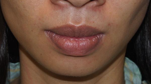術前嘴唇厚  下巴短且後縮