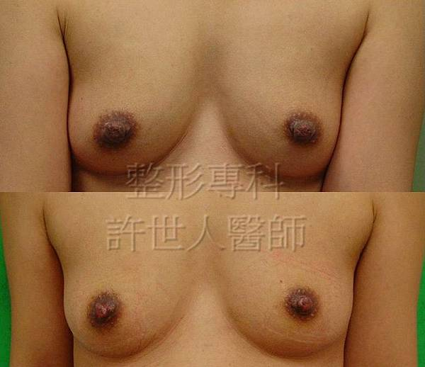 nipple reduction浮.jpg