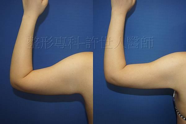 手臂抽脂術後三個月 (2)浮.jpg