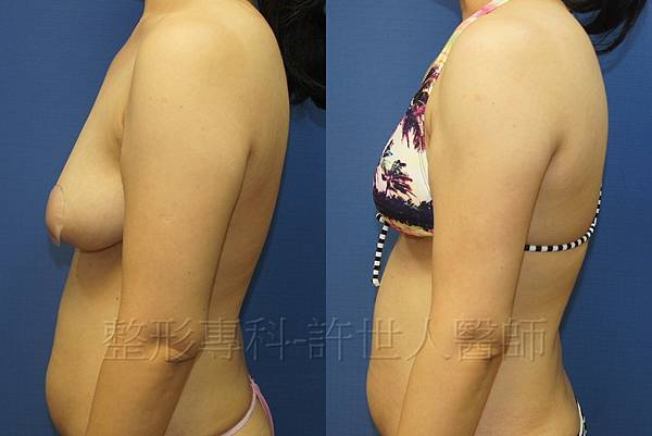 手臂抽脂術後三個月 (1)浮.jpg