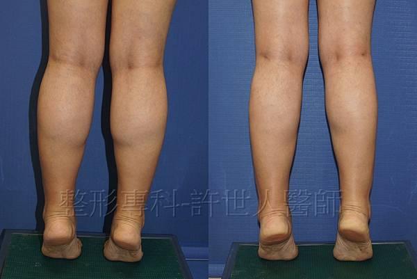 85度C 電波美腿和小腿抽脂術後三個月 (1)浮.jpg