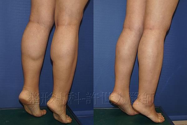 85度C 電波美腿和小腿抽脂術後三個月 (2)浮.jpg