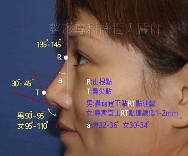 側鼻-1-4-2(近)a 浮.jpg