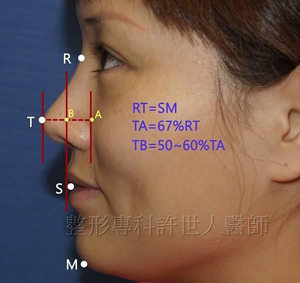 側鼻-2-1(近)a 浮.jpg