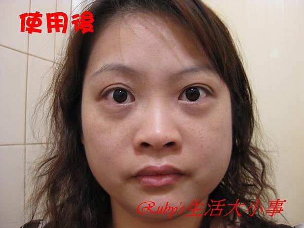 視康-1 (3).JPG