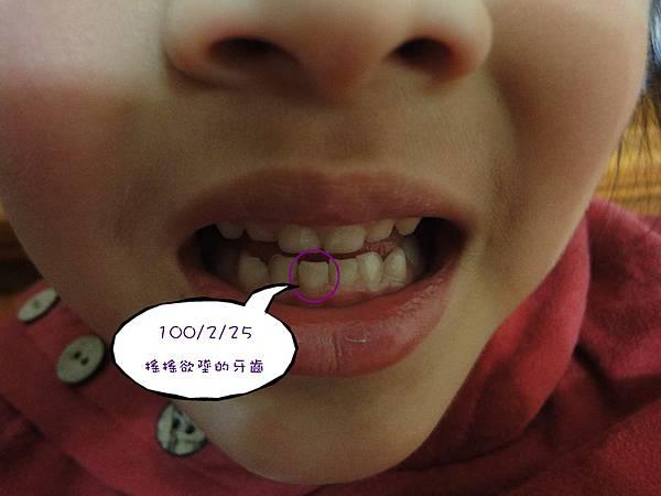牙齒.JPG