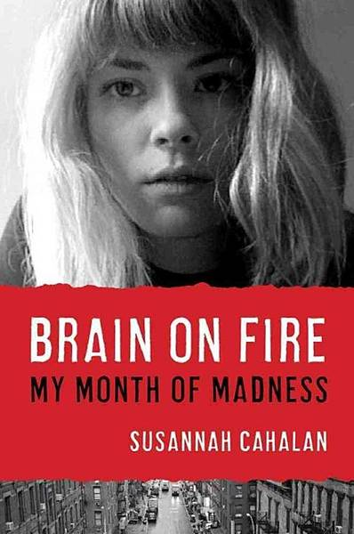 brain on fire (EN)