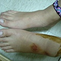 腫腫的豬腳
