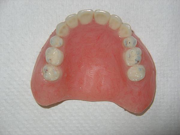 全口活動假牙