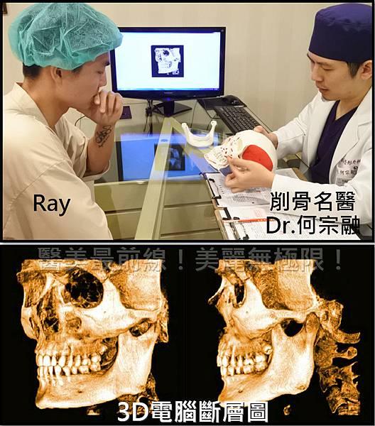 削骨手術3D電腦斷層
