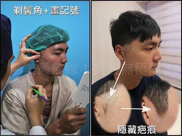 削骨手術恢復期