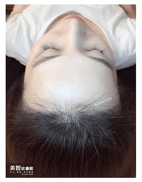 自然的髮際線-髮際線稀疏怎麼辦