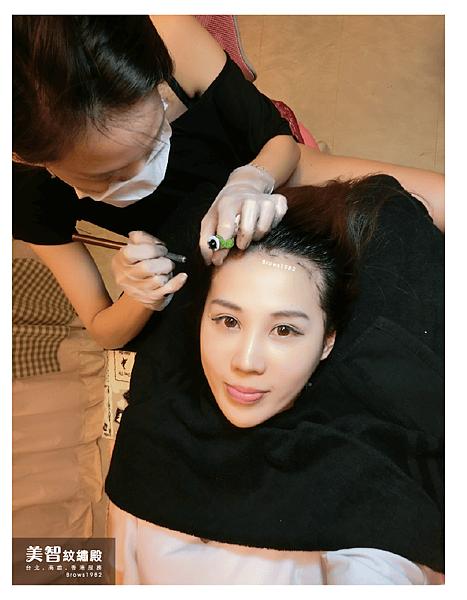 髮際線量身打造-髮際線稀疏怎麼辦