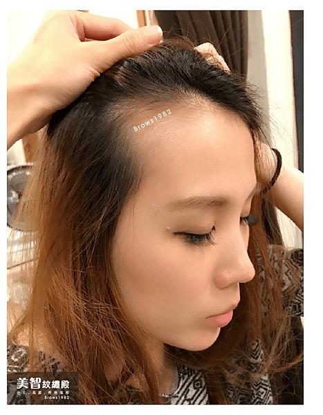 髮際線稀疏-高雄髮際線推薦-美智紋繡殿