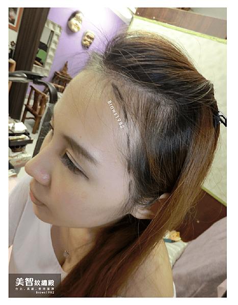 髮際線稀疏怎麼辦-美智紋繡殿