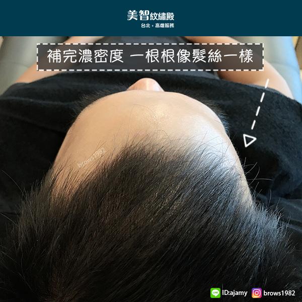 與髮絲無差別的自然髮根-頭頂髮量少