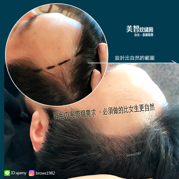 男生的髮際線空洞問題-髮旋空