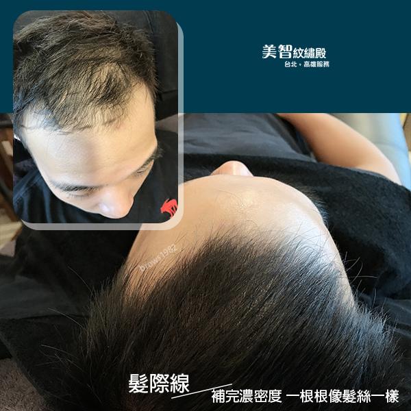 髮際線的空洞問題-頭頂禿