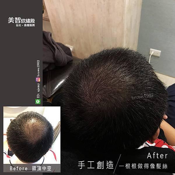 頭頂髮量稀疏改造後對比圖-頭頂髮量少