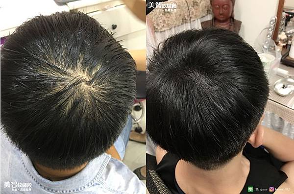 頭頂禿改造前後對比圖-頭頂禿