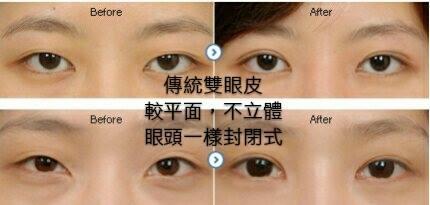 首席醫美診所他願傳統雙眼皮80.jpg