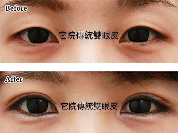他院傳統雙眼皮2.jpg