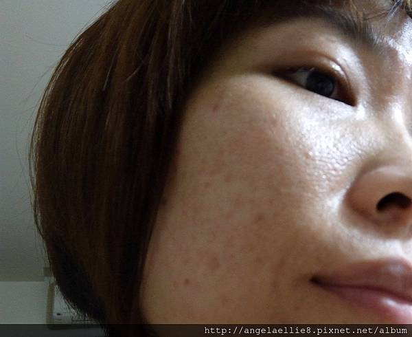 skin 6.jpg