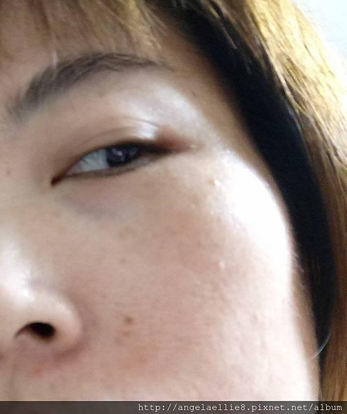 skin 5.jpg