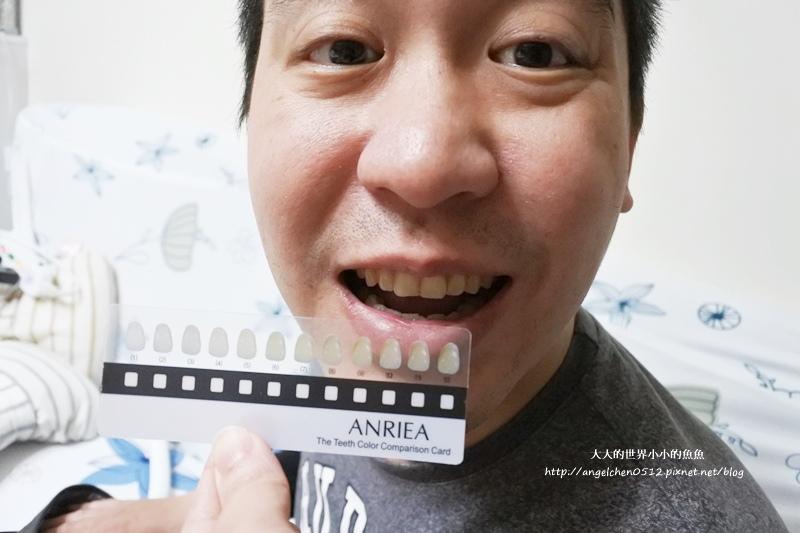 牙齒美白7