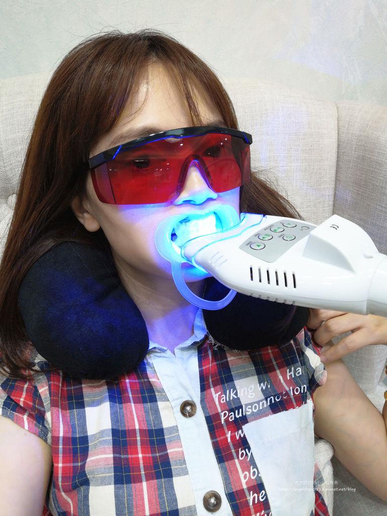 美珂Meico牙齒美容 冷光凝膠亮白12.jpg