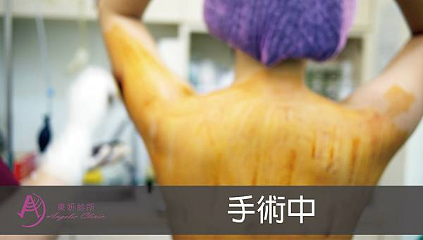 【醫美小知識】水刀抽脂|想瘦女孩的尺寸魔法大作戰-04.jpg