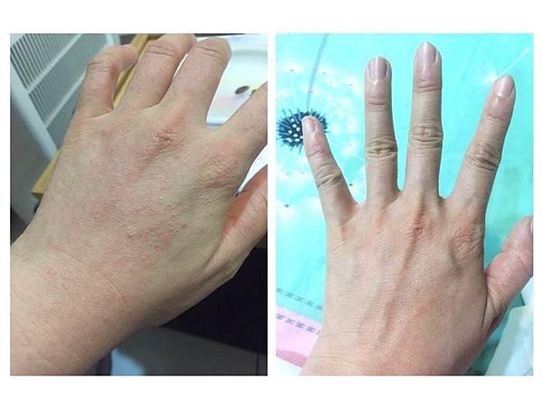 紫黃膏-過敏使用前後 (1).JPG