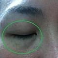 美肌之誌-Q10眼膜-02.JPG