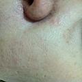 Prof. TK。TPGS-VE抗皺嫩膚生物纖維面膜