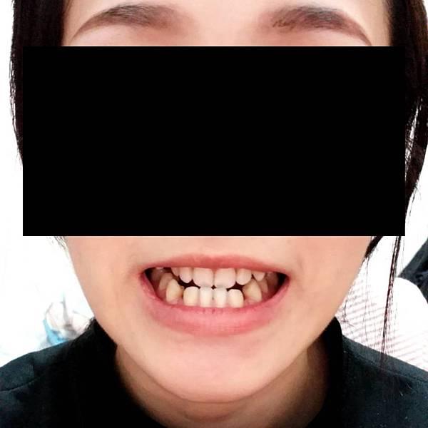 牙套日記,戴牙套前準備5