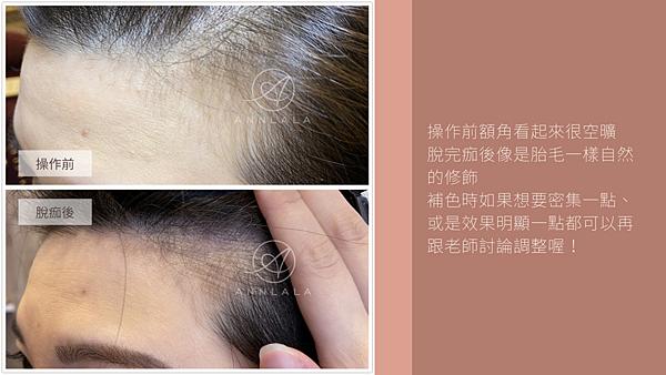 13 操作前額角看起來很空曠 脫完痂後像是胎毛一樣自然的修飾.png