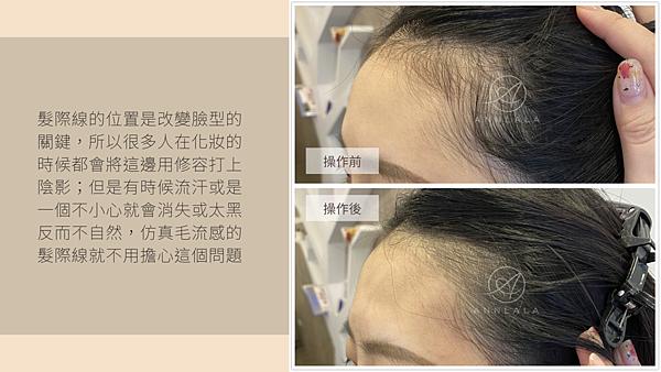 15 髮際線的位置是改變臉型的關鍵.png