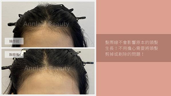 18 髮際線不會影響原本的頭髮生長!不用擔心需要將頭髮剪掉或剃除的問題!.png