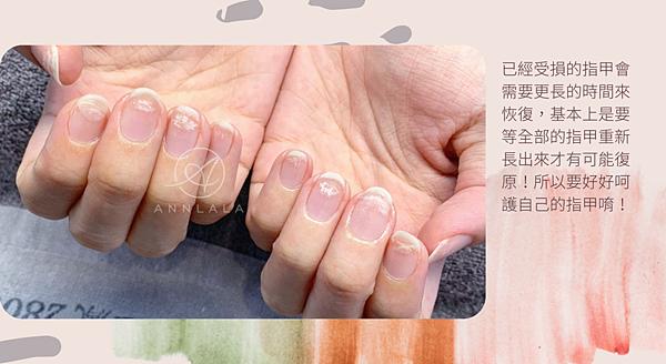 20 已經受損的指甲會需要更長的時間來恢復,基本上是要等全部的指甲重新長出來才有可能復原!所以要好好呵護自己的指甲唷!.png