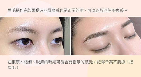 14 眉毛操作完如果還有些微痛感也是正常的唷,可以冰敷消除不適感~.png