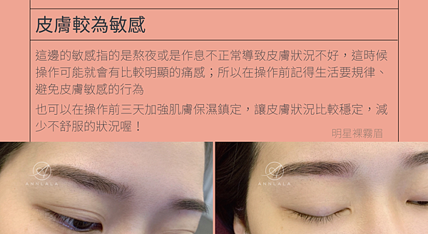 4 皮膚較為敏感.png
