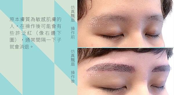 9 原本膚質為敏感肌膚的人,在操作後可能會有些許泛紅(像右邊下圖),通常間隔一下子就會消退。.png