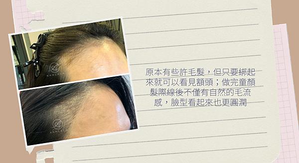 12 做完童顏髮際線後不僅有自然的毛流感.png