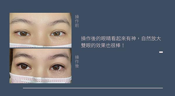 7 操作後的眼睛看起來有神,自然放大雙眼的效果也很棒!.png