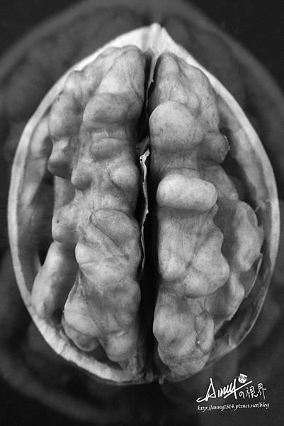 異變的腦.jpg