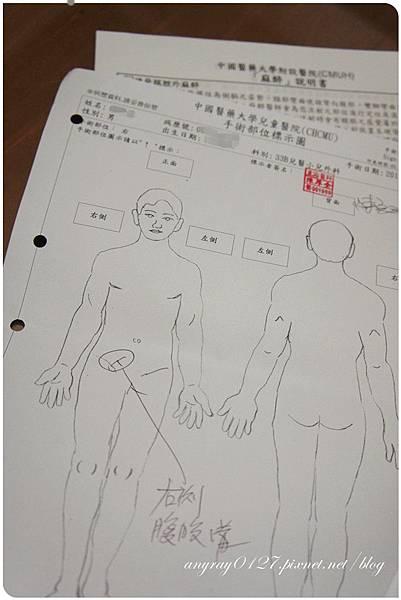 疝氣手術資料 (9).JPG
