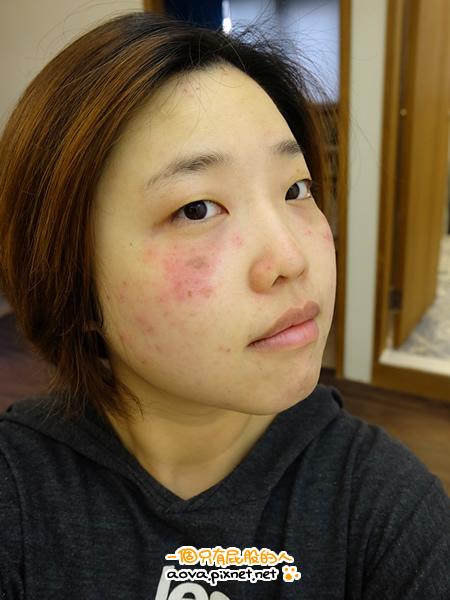 台北醫美極妍診所淨膚雷射12.jpg