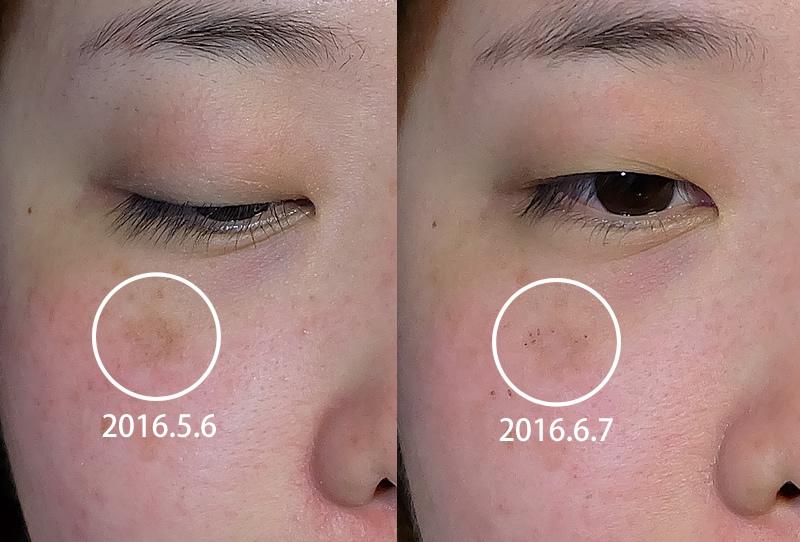 台北醫美極妍診所淨膚雷射11.jpg
