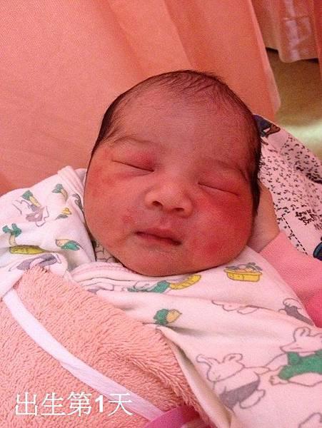 出生第一天