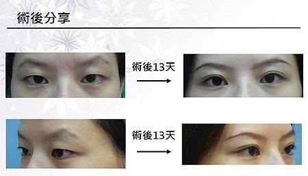 雙眼皮手術1.jpg